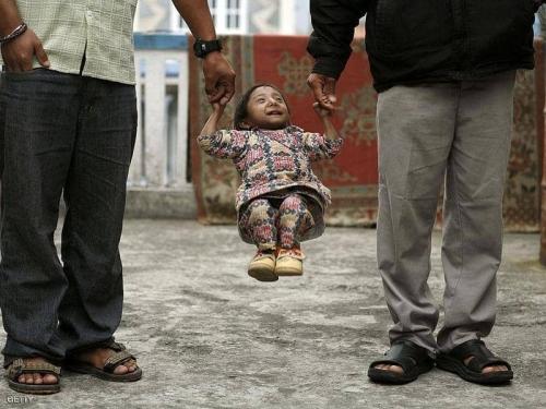 وفاة أقصر رجل في العالم..صور
