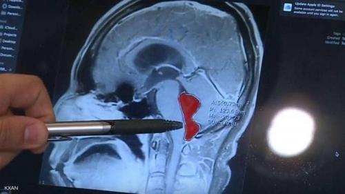 دودة في دماغ رجل لمدة 10 سنوات.. كيف دخلت وماذا فعلت بدماغه؟