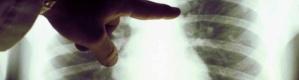 مثل التدخين.. أطعمة تؤدي إلى سرطان الرئة