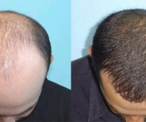 5 أدوية منزلية تعالج «الصلع» وتعيد نمو الشعر