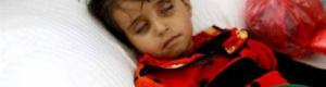 مرض الدفتيريا يعود بشكل مخيف الى اليمن