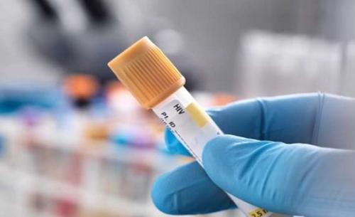 دراسة: مفاجأة.. كورونا يمكن أن يقضي على الإيدز ببريطانيا إلى الأبد