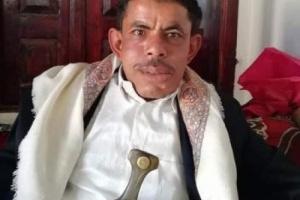 مقتل مواطن على يد زوجته بـ 13 طعنة في محافظة البيضاء