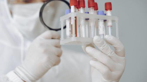 """دراسة هارفارد تزعم اكتشاف مدى بقاء مناعة """"كوفيد-19"""" لدى مرضى الحالات الشديدة!"""
