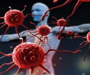 عارض جديد يكشف الإصابة بأخطر أنواع السرطانات