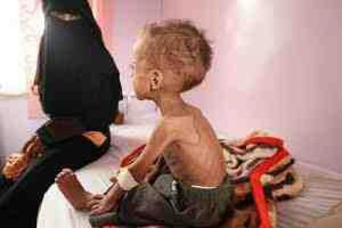 شاهد .. طفل يمني يموت من الجوع تكشف فداحة الجريمة التي اصابت البلاد والعباد