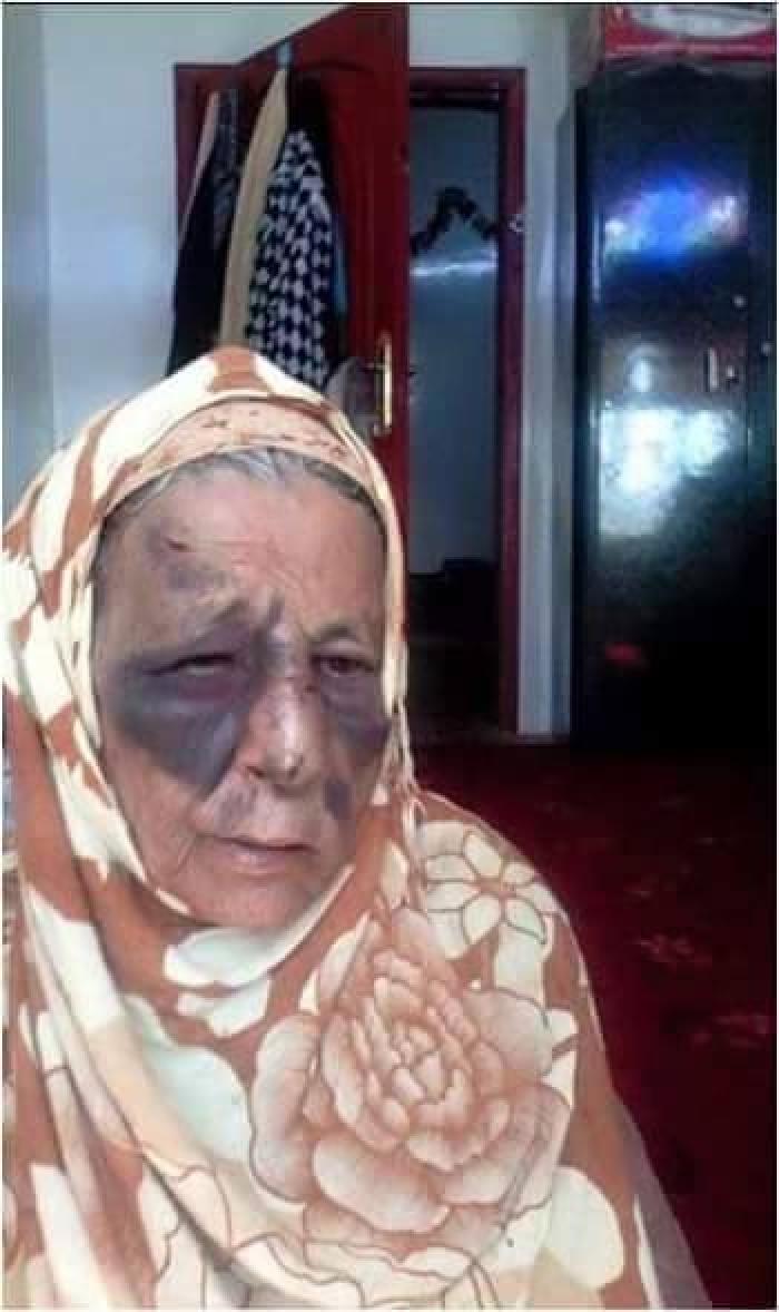 لن تصدق .. يمني يُحرض زوجته واخواتها على ضرب أمه - صور مؤلمة