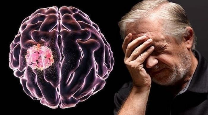 5 أعراض مبكرة لأورام الدماغ السرطانية